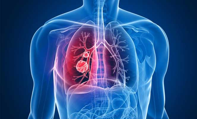 Use of Systemic Steroids in Pulmonary Diseases